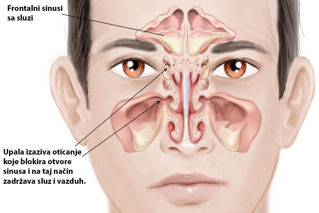 Zašto dolazi do upale sinusa?